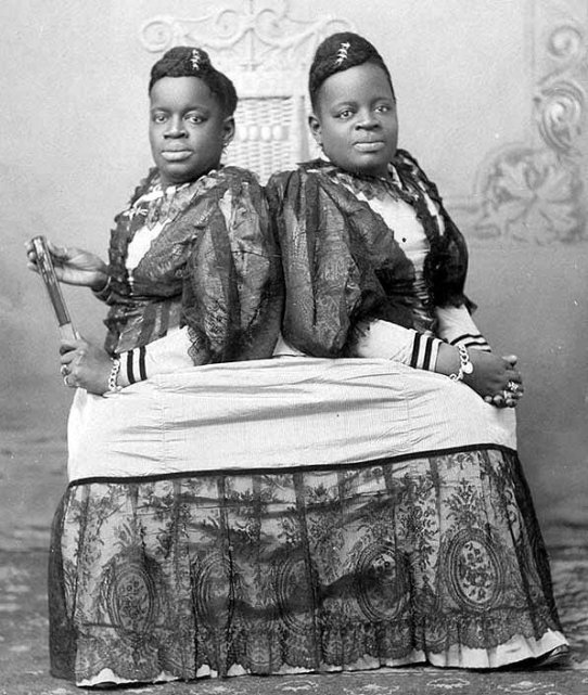 http://scribol.com/people/news-7-incredible-historical-siamese-twins/1